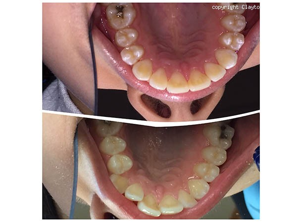 <span>Braces: Before and After:</span>
