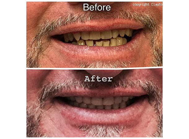 <span>Before and After: Full Mouth Reconstruction with Crowns and Bridges:</span>